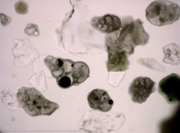 Forams comprise some 6,000 different species of single cell organisms. Credit: OCC Biology Department - Marc Perkins (Via Flickr Creative Commons)