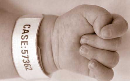 "Baby hand with medical bracelet which reads ""CASE: 57362"""