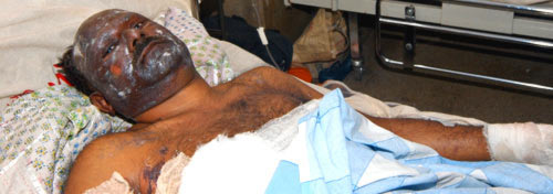Injured man lies in hospital bed.
