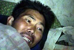 AIDS victim grimaces in pain