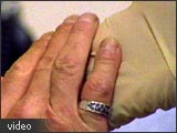 Image of a hand on an arm.