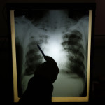 In Race Against TB, Testing Struggles to Keep Up