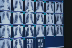 Discovering A Hidden Epidemic of Severe Black Lung Disease
