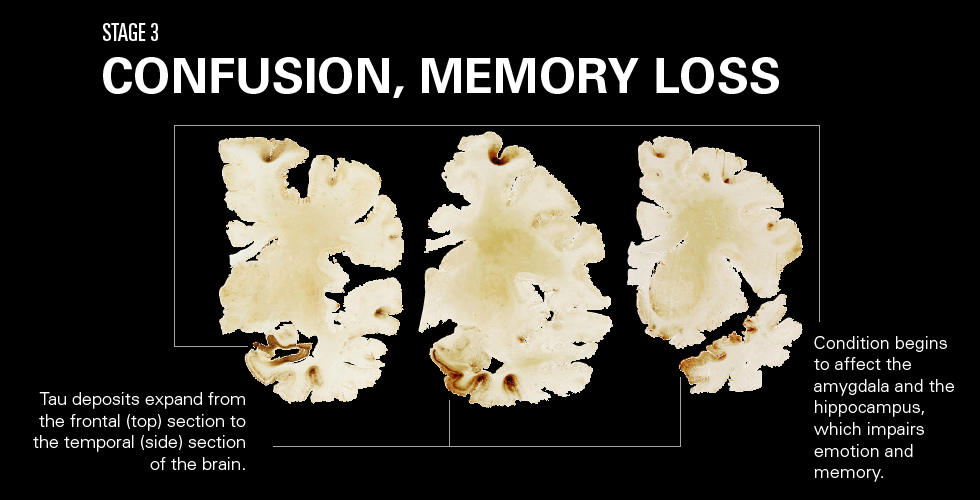 How Cte Chronic Traumatic >> How Cte Affects The Brain League Of Denial The Nfl S
