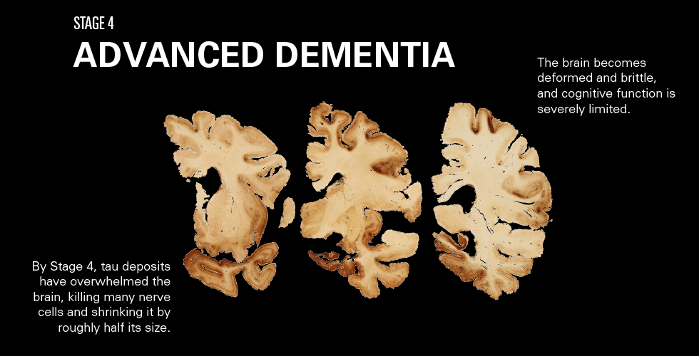 How CTE Affects the Brain | League of Denial: The NFL's ...