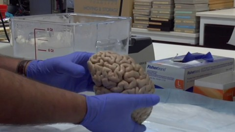 Family Income Affects Children's Brain Size, Research Shows